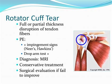 Evaluation And Treatment Of Common Injuries