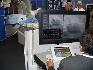 Robotic Pci Study Reveals Favorable Results In Reducing