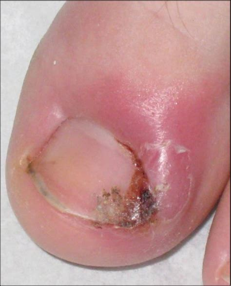 sore nail beds nailing the management of the ingrown great toenail