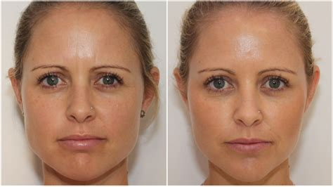 surgical facial reshaping dr michael miroshnik