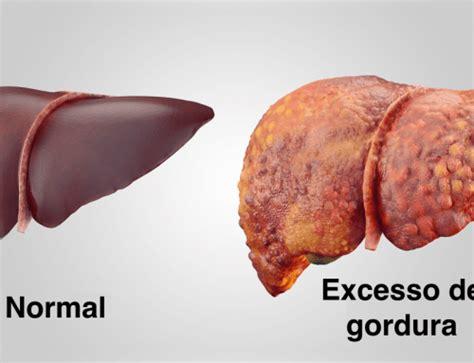 Acido Urico Dieta Alimentare by 193 Cido 250 Elevado Gota Como Se Alimentar