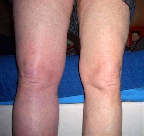 Deep Vein Thrombosis Dvt Causes And Overview  Autos Post