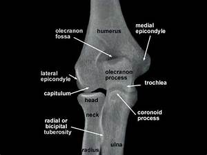 Radiography Of Upper Limb