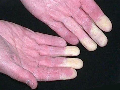 remede naturel pour soigner la maladie de raynaud grands