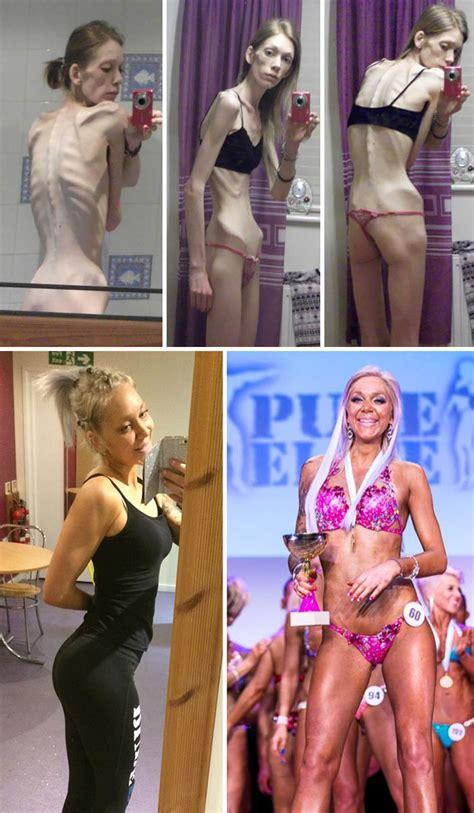 fotos del antes  despues de la anorexia