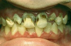 home remedies for abscess gum