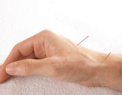 carpal tunnel syndrome ct acupuncture center