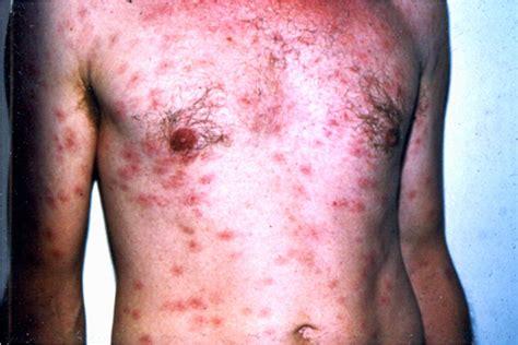 Secondary Syphilis Causes Symptoms Treatment Secondary
