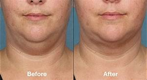 Laser Resurfacing, before after, pictures, realSelf
