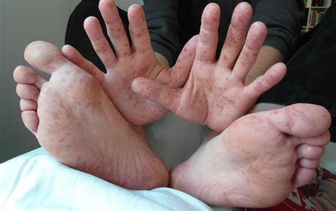 Rash On Hand And Feet Of A 36 Year Old Man