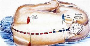 epidural steroid injections types