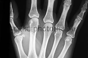 Spiral fracture of the hand, X-ray - Stock Image C007/2746 ...
