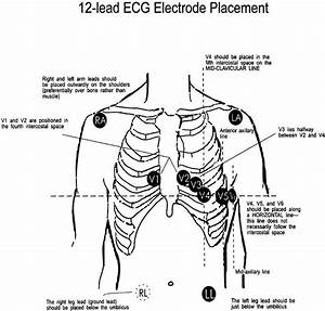 Standard 12 Lead Ecg Placement