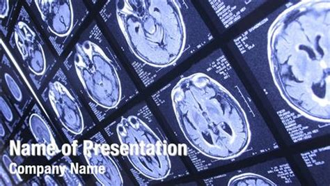 radiology powerpoint templates powerpoint backgrounds