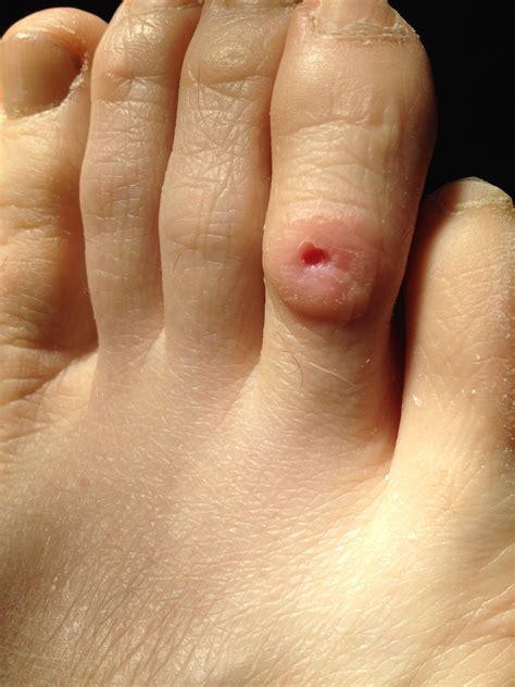 Comment soigner un ongle mycose
