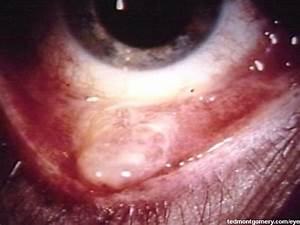 Conjunctival Granuloma
