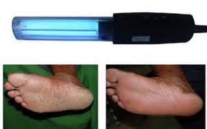 anti psoriasis phototherapy ls 311nm uvb narrow band