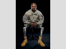 Boston Bombing Amputees Face Lengthy Recovery