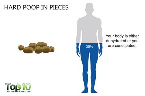 What Your Poop Says About Your Health  Top 10 Home Remedies. Florida Reverse Mortgages House Music Systems. Comcast Fort Collins Colorado. United Auto Insurance Online Payment. How To Get Business Loan For New Business. Filing An Llc In California Usa Diesel Suv. Professional Counseling Degree. Corporate Executive Board Jobs. Garage Door Repair Garland Tx