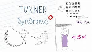 What Is Turner Syndrome