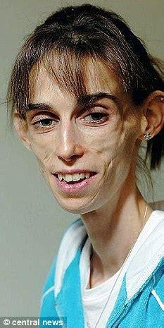 anorexia bulimia  memory  kate chilver ana