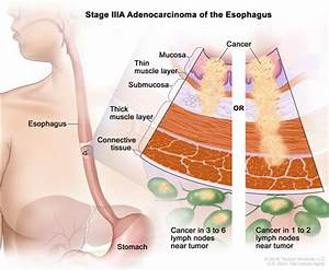 Definition Of Stage Iii Esophageal Adenocarcinoma