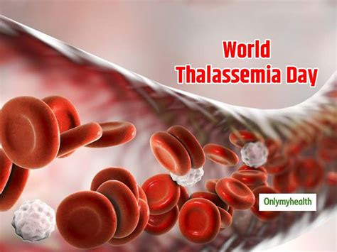 Thalassemia is an inherited blood disorder. World Thalassemia Day 2019: Everything you must Know about the Fatal Disease | Blood Diseases