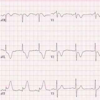 st elevation myocardial infarction   covid