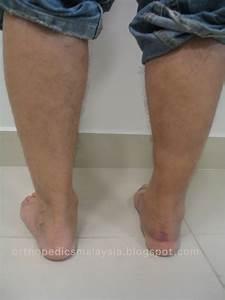 Gastrocnemius Muscle Tear  Calf Tear