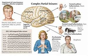 Understanding Epilepsy – Are Natural Treatments Effective ...