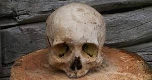 10 Weird But Fascinating Problems Faced By Ancient People ...