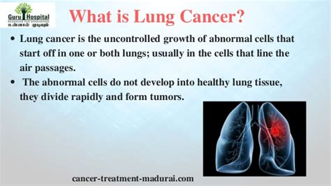 Lung Cancer In Tamil Nadu  Best Cancer Hospital In India. Estate Lawyers In Chicago Pop A Lock Orlando. Best Website Builder Hosting. Survey Management Software Maine Art College. Garage Door Repair Austin Sell Diamond Online. Virtual Receptionist Kiosk Shop Floor Systems. Establishing A University Accident Help Line. Inverse Psoriasis Treatment Moving Vans Nyc. Asset And Liability Investigation