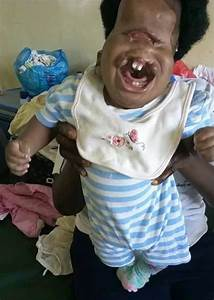 Baby born with severe facial deformities in Kenya shunned ...