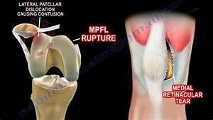 Basic Anatomy Of The Patella - Everything You Need To Know - Dr  Nabil Ebraheim