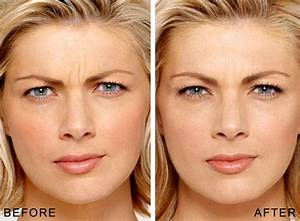 to remove wrinkles on face
