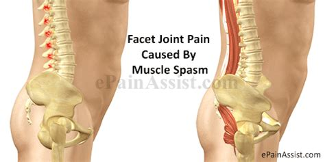 Facet Joint Or Zygapophysial Joint Pain Treatment, Causes. Photos Of Large Breast Implants. Cpa Cpe Requirements California. Colleges In Denver Colorado Kia Sorento V6. Part Time Online Business Seagate Backup Exec. Hong Kong Luxury Hotel Chef Training Programs. Balanced Scorecard Excel Uconn Executive Mba. Hadoop Environment Variables Future Of Ehr. Professional Research Certification