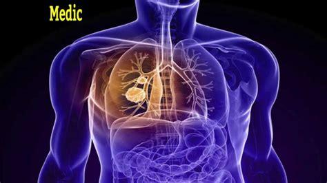 pleuralmesotheliomaasbestoslungcancerperitoneal