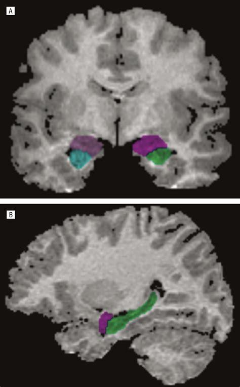 hippocampus  amygdala morphology  attention deficit