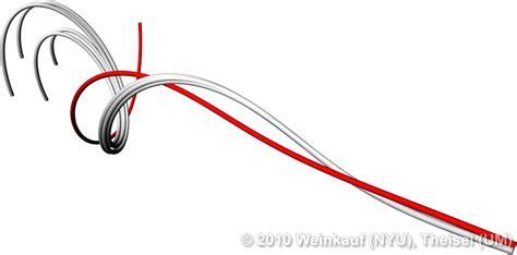 home design app cheats vector lines png
