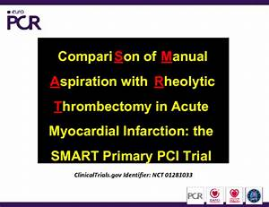 Comparison Of Manual Aspiration With Rheolytic