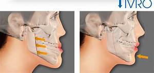 Everything You Need To Know About Double Jaw Surgerymedisetter