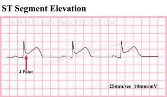 St Segment Elevation ECG Strip