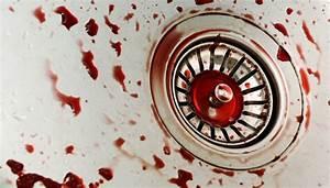 Blutflecken Aus Kleidung Entfernen : blutflecken entfernen 7 tipps ~ Eleganceandgraceweddings.com Haus und Dekorationen
