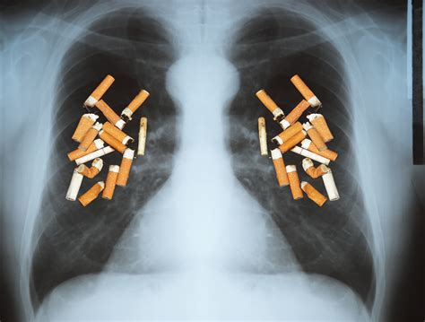 lung cancer ct many harvard health test likely benefit effective covered hidden cost smokers xray merz beverly executive editor