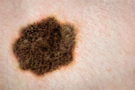 groundbreaking treatment  herpes  combat skin cancer