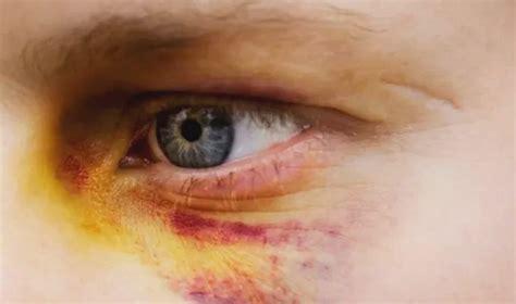 como deshacerte de  ojo morado  remedios naturales