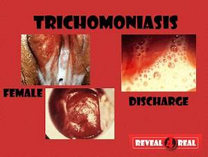Trichomoniasis Trichomoniasis Discharge Color - Anatomy