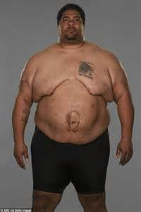 Obese Veteran At 531lbs Leads Cast Of Extreme Weight Loss