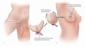 Pin On Mastectomy Tattoos As Reference