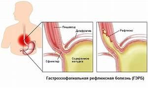 Лечение тяньши простатита